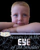 eye & freckle challenge